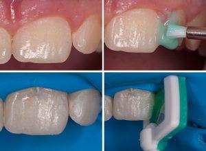 Лечение кариеса зубов по технологии Icon без бормашины