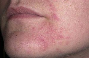 Кожа вокруг губ шелушится и покраснела: почему и что делать