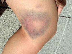 Гематома на ноге после ушиба: к чему может привести безобидная на первый взгляд травма