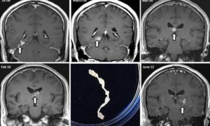 Мозговые паразиты: симптомы паразитов в головном мозге