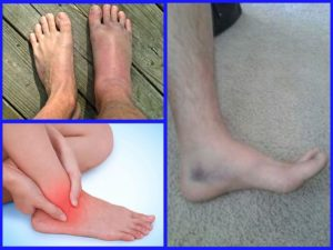 Как лечить шишки на ногах после ушиба, препараты и методы лечения гематомы на ноге